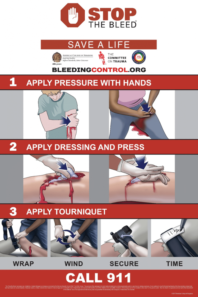 Bleeding Control instructions